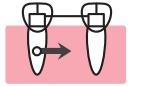 矯正治療による歯牙欠損部の閉鎖